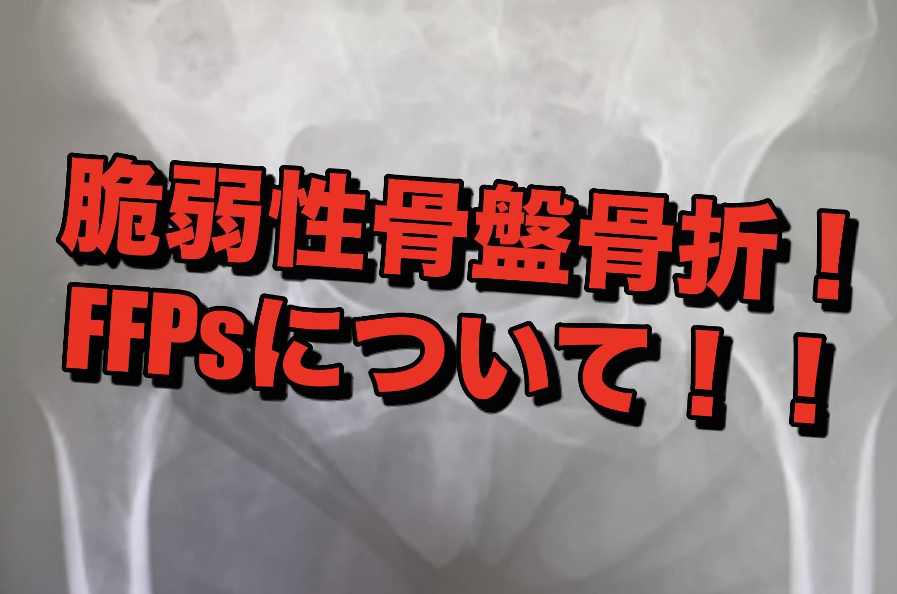 【整形外科】脆弱性骨盤骨折について!!