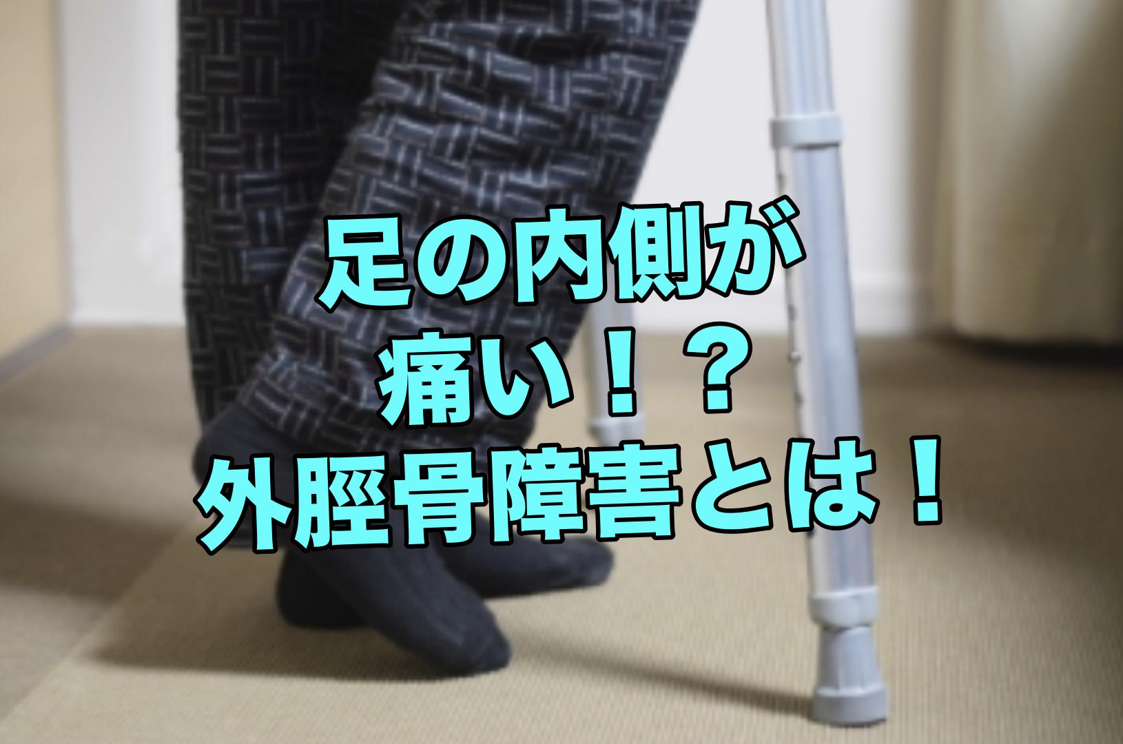 足の内側が出っ張って痛い!?外脛骨とは?【整形外科】